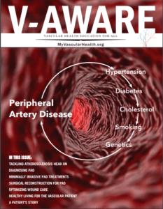 V-Aware